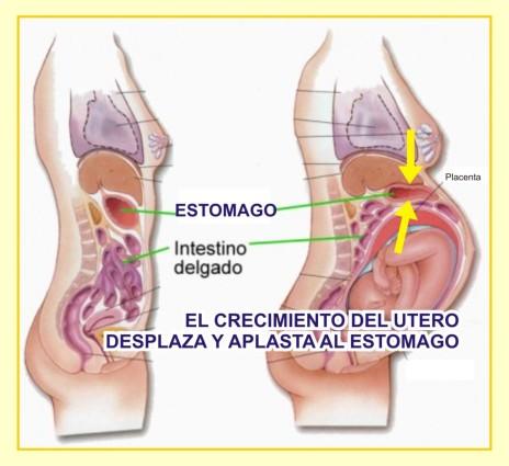 acidez-durante-el-embarazo-por-el-crecimiento-del-utero-1024x938